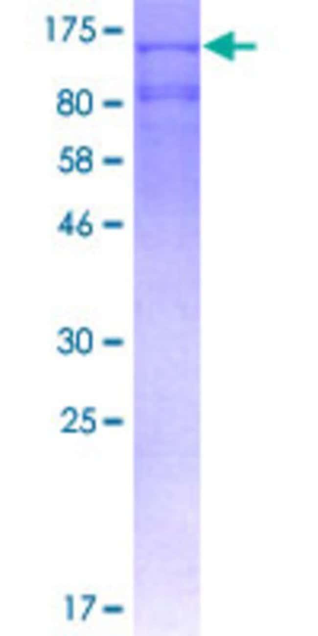 Abnova Human IDE Full-length ORF (AAH96336.1, 1 a.a. - 1019 a.a.) Recombinant