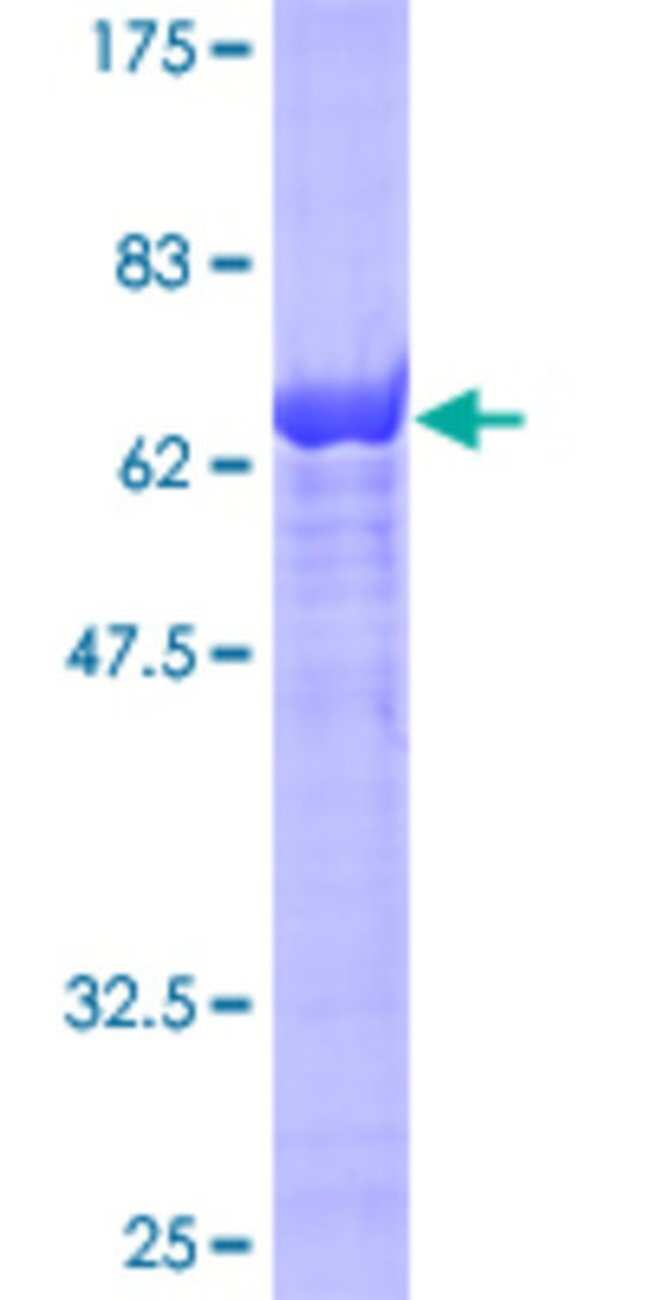 Abnova Human IDH1 Full-length ORF (AAH12846, 1 a.a. - 414 a.a.) Recombinant