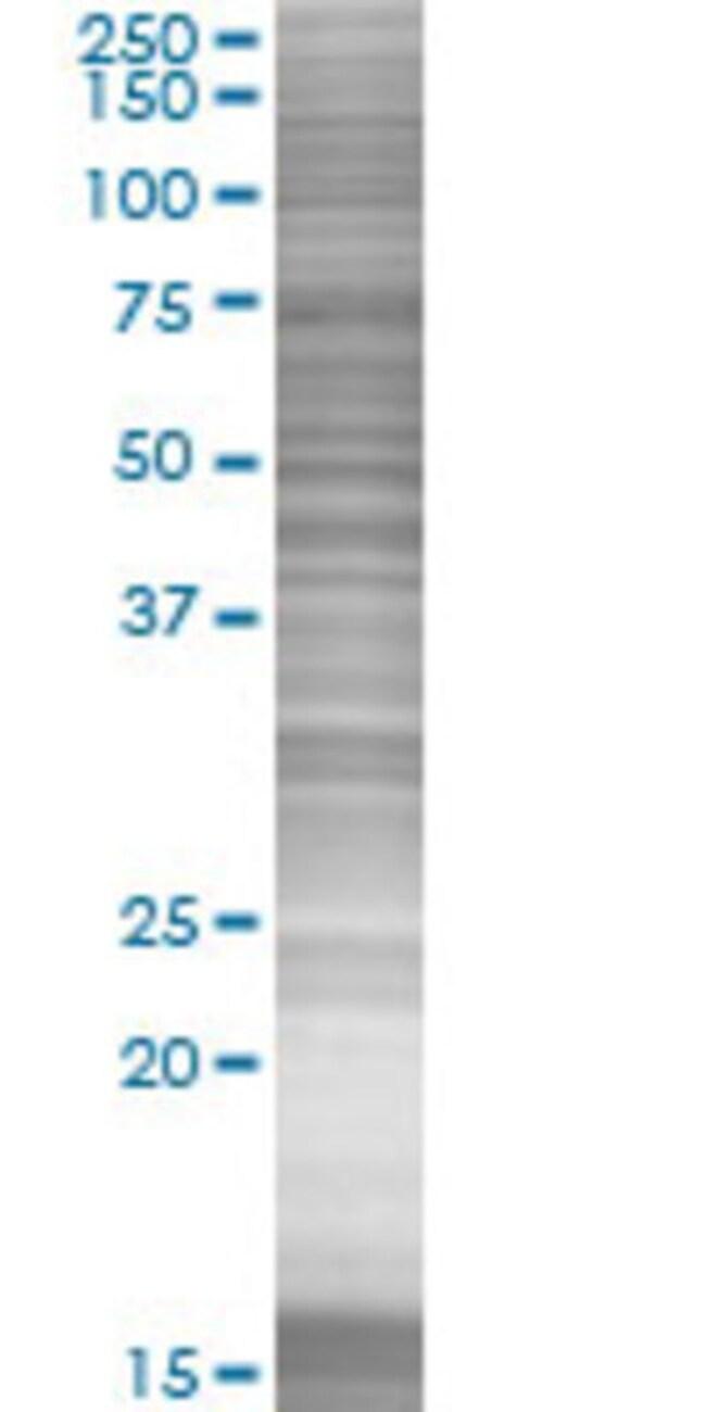 Abnova IDH3B 293T Cell Transient Overexpression Lysate (Denatured) 100µL:Life