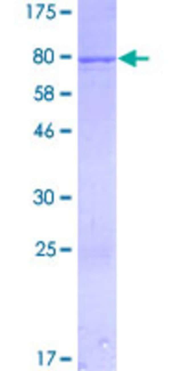 Abnova Human IFIT1 Full-length ORF (NP_001001887.1, 1 a.a. - 478 a.a.)