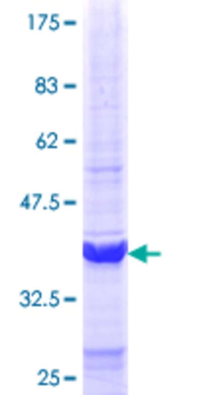 Abnova Human IFIT1 Partial ORF (NP_001001887.1, 318 a.a. - 420 a.a.) Recombinant
