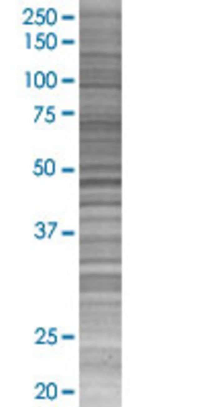 Abnova IFNA1 293T Cell Transient Overexpression Lysate (Denatured) (T01)