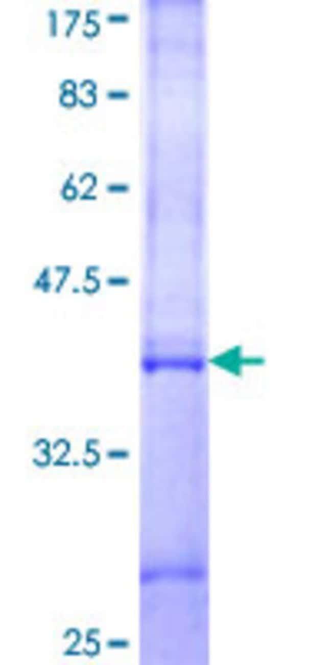 Abnova Human IFNA5 Partial ORF (NP_002160, 100 a.a. - 189 a.a.) Recombinant