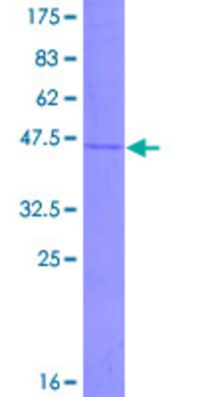 Abnova Human IFNA6 Full-length ORF (NP_066282.1, 1 a.a. - 189 a.a.) Recombinant