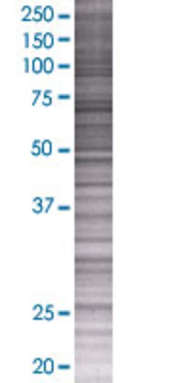 Abnova IFNA6 293T Cell Transient Overexpression Lysate (Denatured) 100µL:Life
