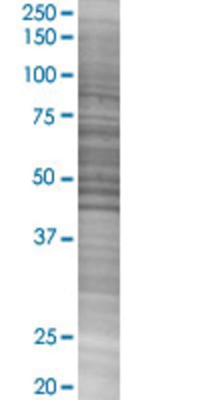 Abnova IFNA16 293T Cell Transient Overexpression Lysate (Denatured) 100µL:Life
