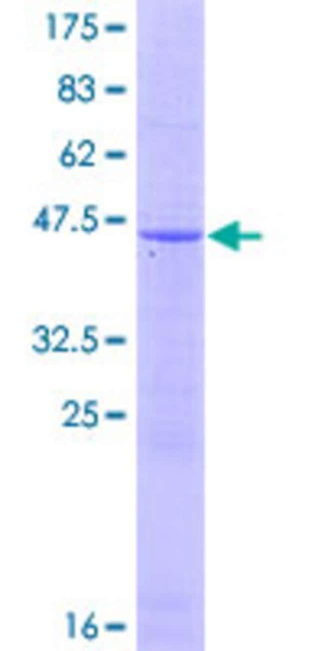 Abnova Human IFNA17 Full-length ORF (NP_067091.1, 1 a.a. - 189 a.a.) Recombinant