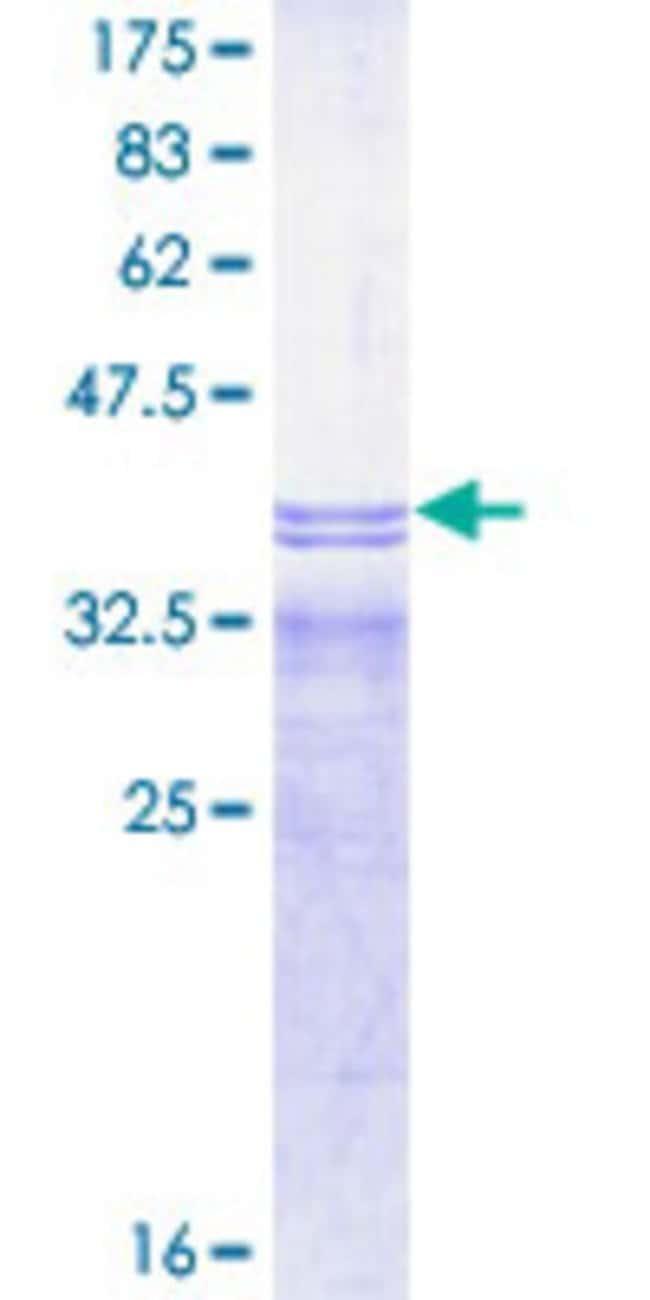 Abnova Human IFNAR2 Partial ORF (NP_997468.1, 144 a.a. - 243 a.a.) Recombinant