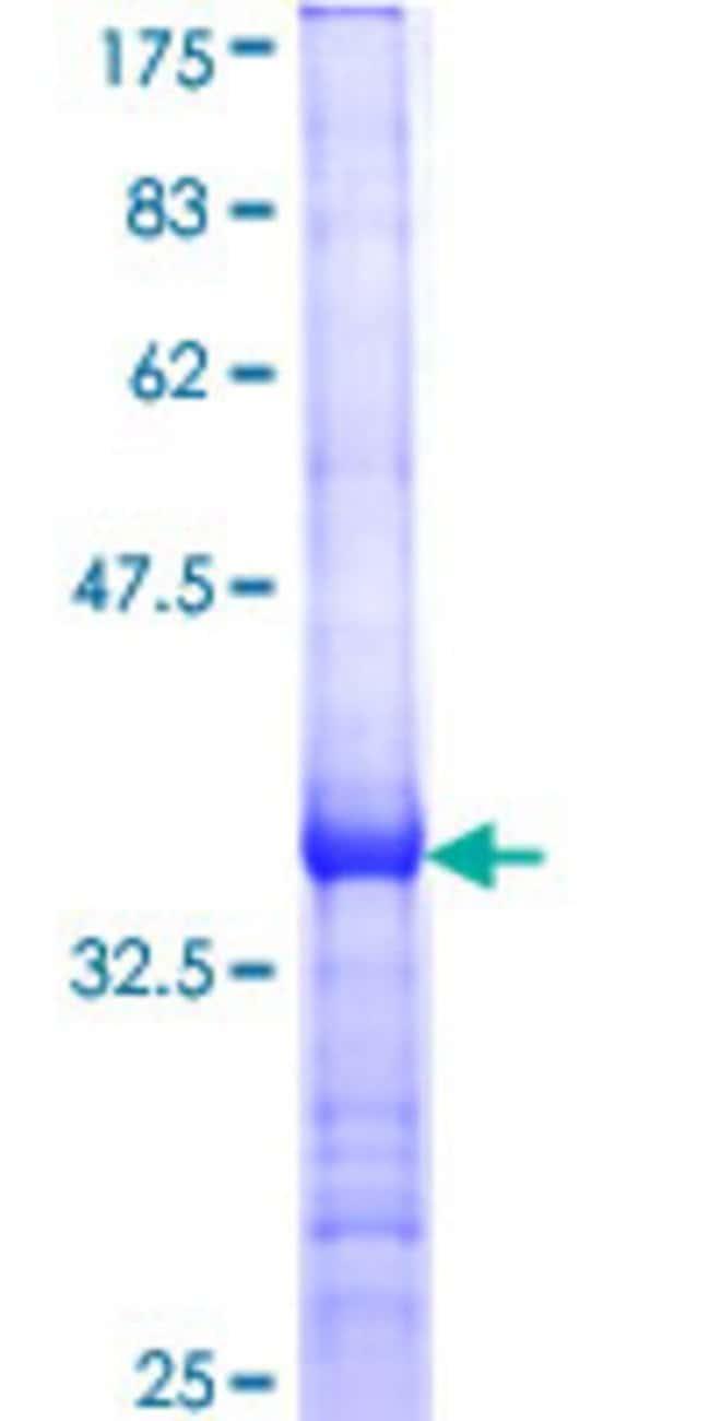 Abnova Human IFNB1 Partial ORF (NP_002167, 102 a.a. - 187 a.a.) Recombinant