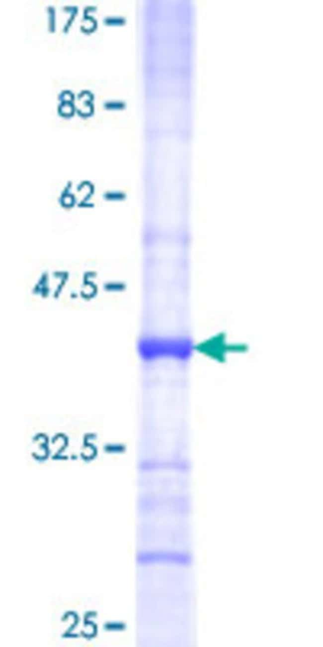 Abnova Human IFNG Partial ORF (AAH70256.1, 57 a.a. - 166 a.a.) Recombinant