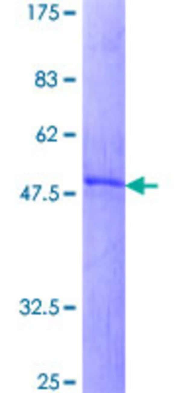 Abnova Human IGFBP1 Full-length ORF (AAH35263.2, 1 a.a. - 259 a.a.) Recombinant