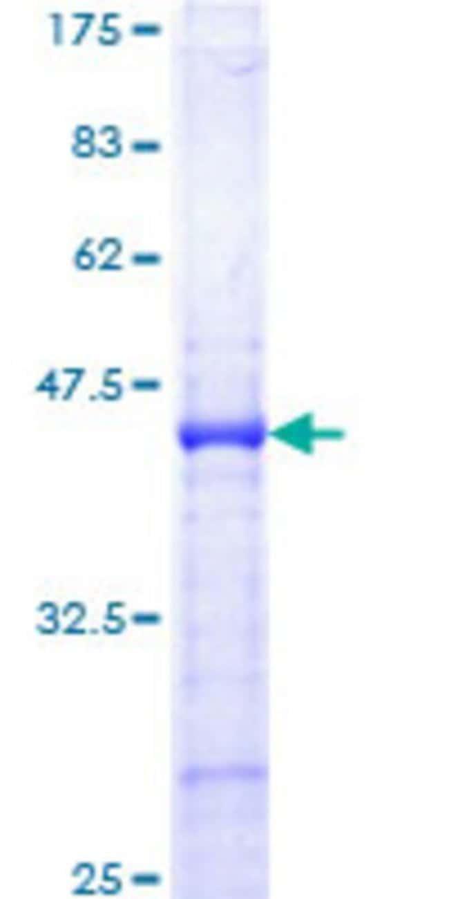 Abnova Human IGFBP3 Partial ORF (AAH64987.1, 182 a.a. - 291 a.a.) Recombinant