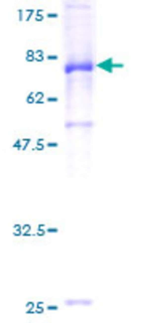 Abnova™Human IGHA1 Full-length ORF (AAH05951, 1 a.a. - 500 a.a.) Recombinant Protein with GST-tag at N-terminal 10μg Abnova™Human IGHA1 Full-length ORF (AAH05951, 1 a.a. - 500 a.a.) Recombinant Protein with GST-tag at N-terminal