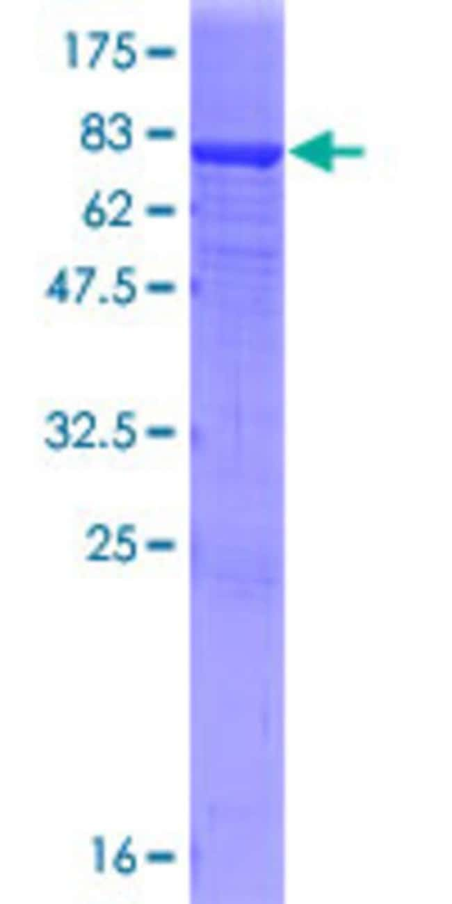 Abnova™Human IGHA2 Full-length ORF (AAH73765.1, 1 a.a. - 477 a.a.) Recombinant Protein with GST-tag at N-terminal 25μg Abnova™Human IGHA2 Full-length ORF (AAH73765.1, 1 a.a. - 477 a.a.) Recombinant Protein with GST-tag at N-terminal