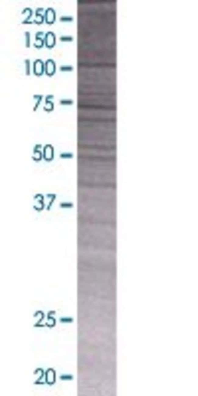 Abnova IGHG1 293T Cell Transient Overexpression Lysate (Denatured) 100µL:Life