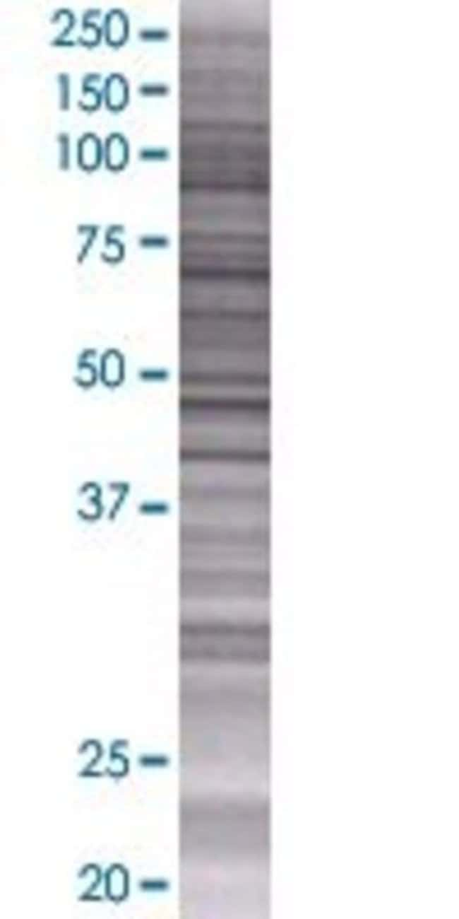 Abnova IGJ 293T Cell Transient Overexpression Lysate (Denatured) (T01)