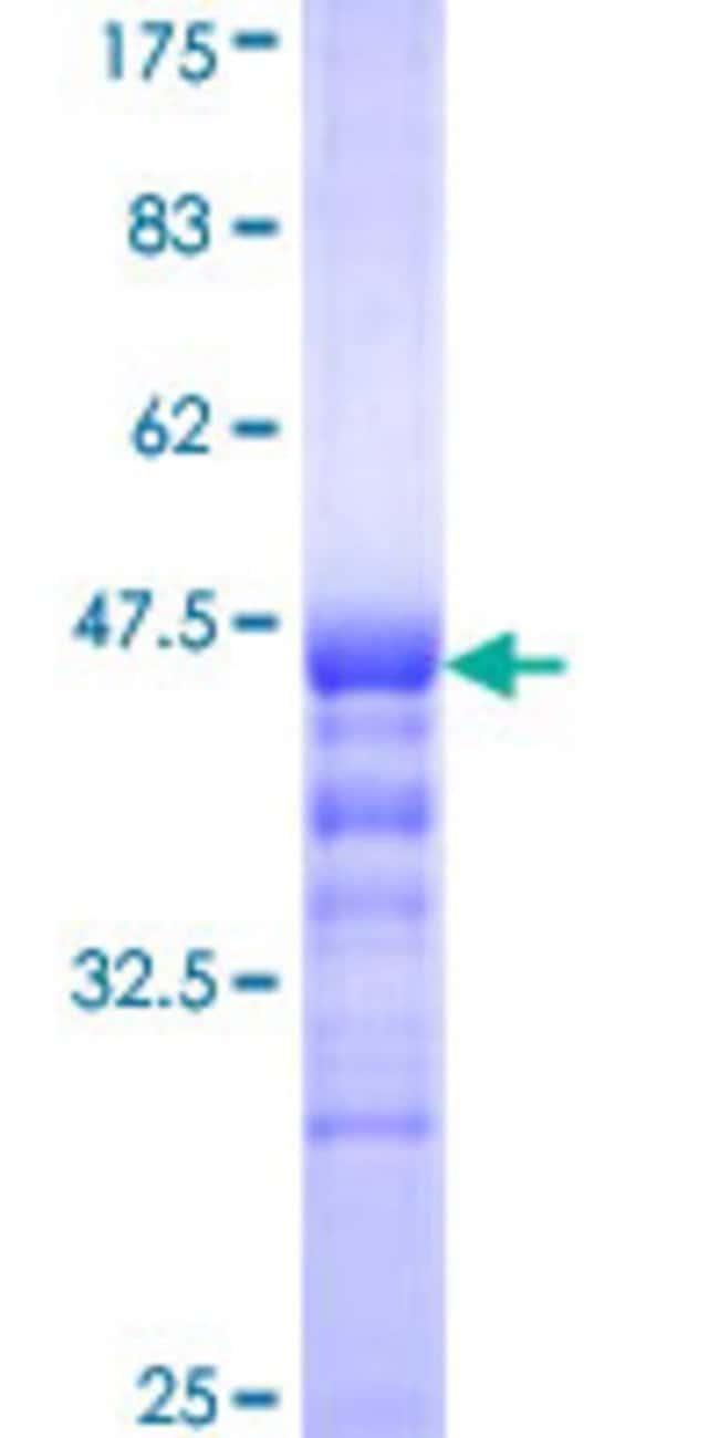 Abnova Human IK Partial ORF (NP_006074, 458 a.a. - 557 a.a.) Recombinant