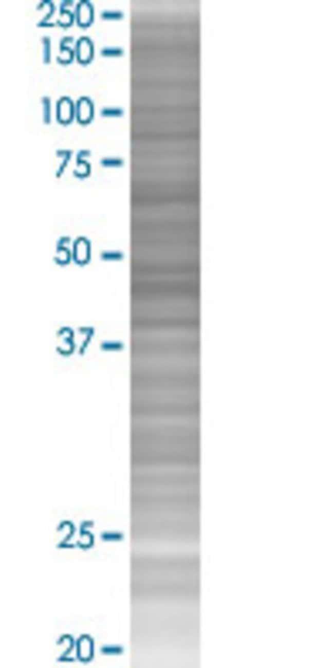 Abnova IL1RN 293T Cell Transient Overexpression Lysate (Denatured) (T02)