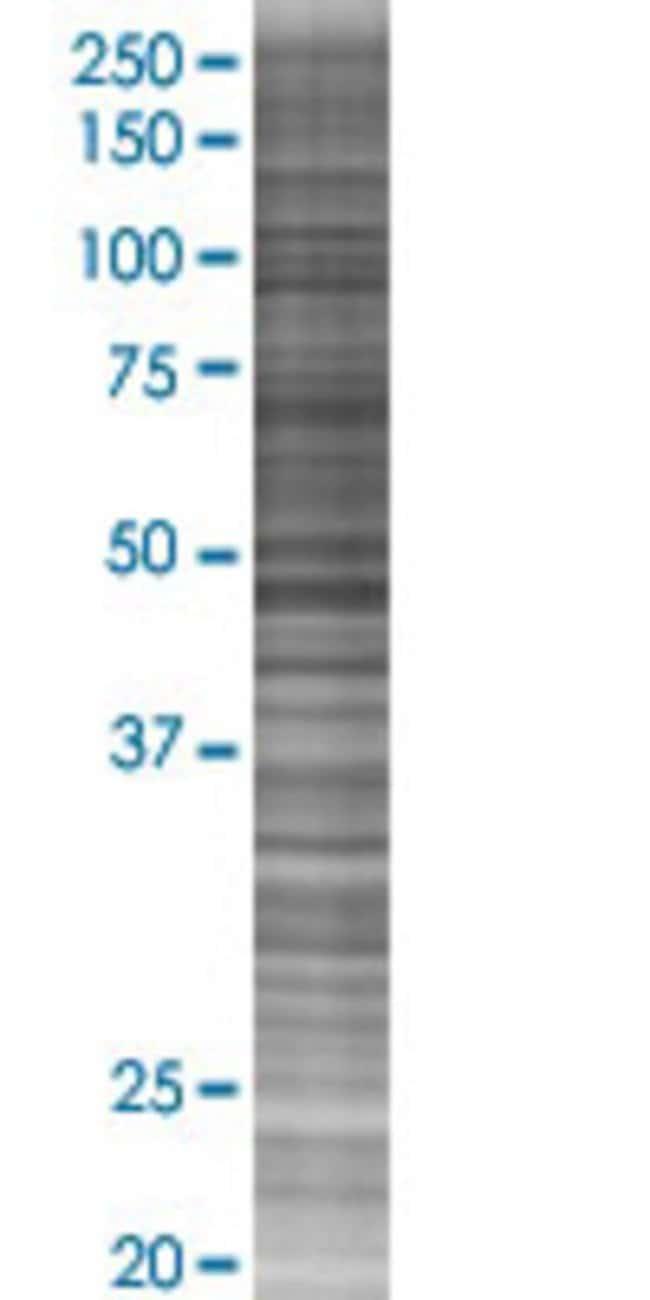 Abnova IL3 293T Cell Transient Overexpression Lysate (Denatured) (T01)