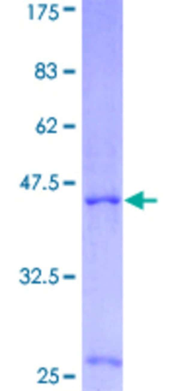 Abnova Human IL4 Full-length ORF (NP_000580, 1 a.a. - 153 a.a.) Recombinant