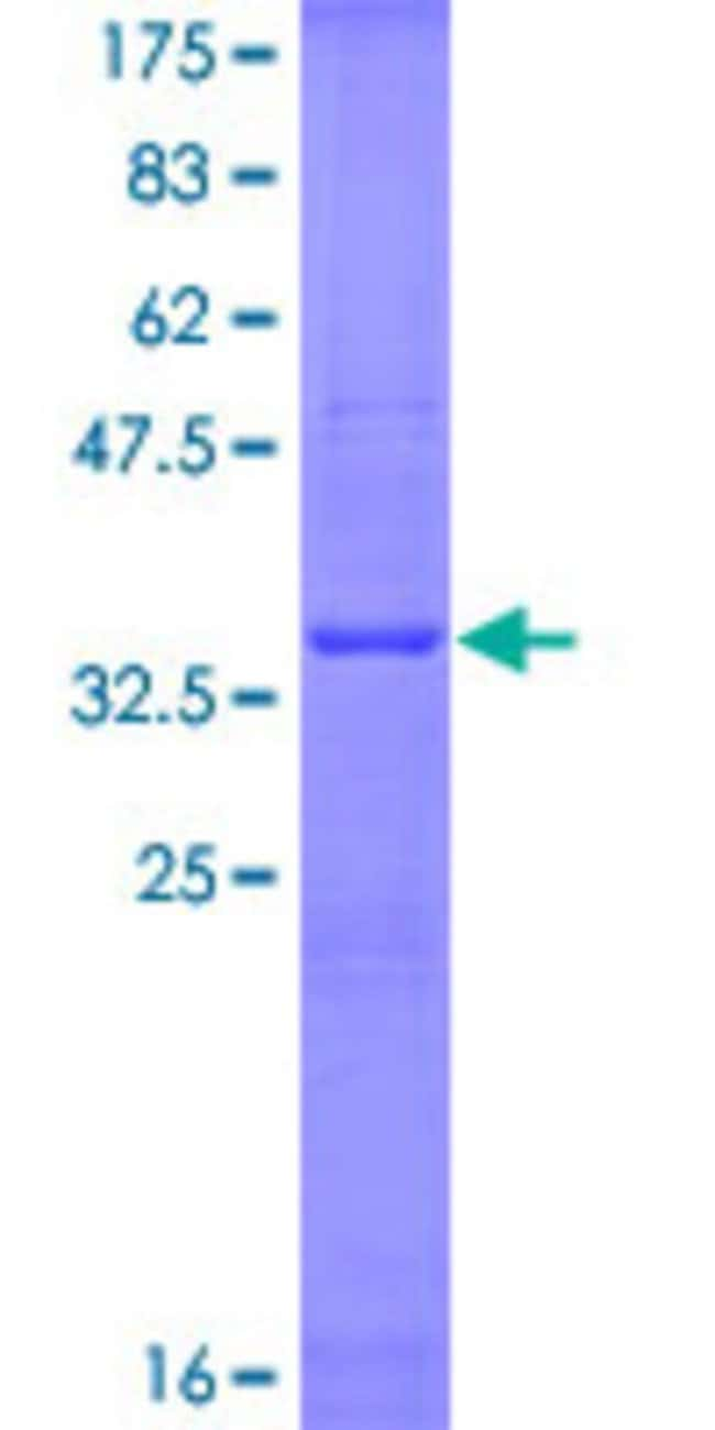 Abnova™Human IL6 Partial ORF (AAH15511, 113 a.a. - 212 a.a.) Recombinant Protein with GST-tag at N-terminal 25μg Abnova™Human IL6 Partial ORF (AAH15511, 113 a.a. - 212 a.a.) Recombinant Protein with GST-tag at N-terminal