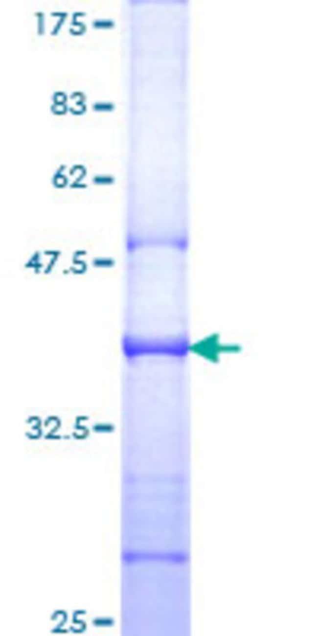 Abnova Human IL6ST Partial ORF (NP_002175, 23 a.a. - 122 a.a.) Recombinant