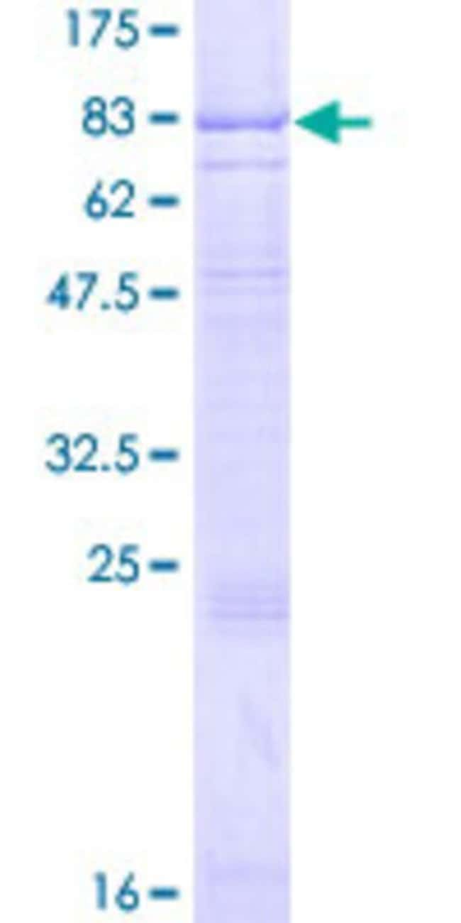 Abnova Human IL7R Full-length ORF (AAH67539.1, 1 a.a. - 459 a.a.) Recombinant