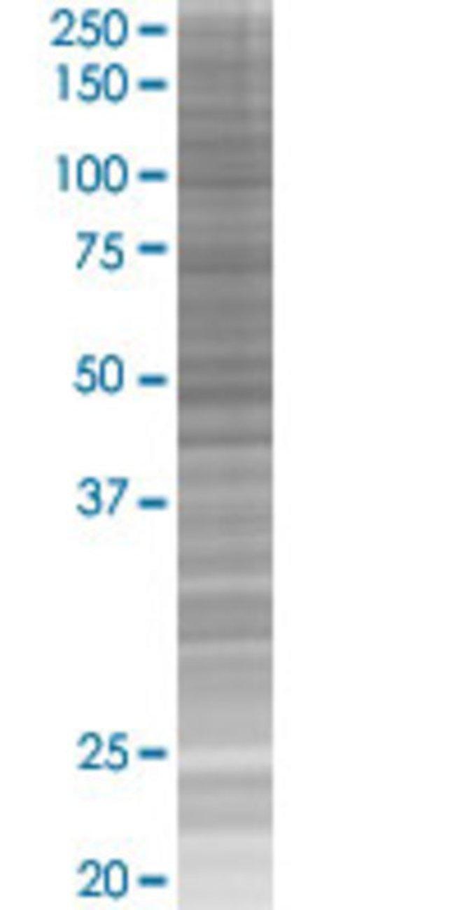 Abnova IL10 293T Cell Transient Overexpression Lysate (Denatured) (T02)