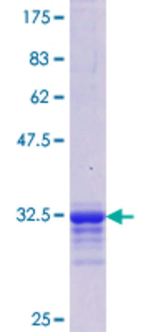 Abnova™Human IL11 Partial ORF (NP_000632.1, 25 a.a. - 74 a.a.) Recombinant Protein with GST-tag at N-terminal 10μg Abnova™Human IL11 Partial ORF (NP_000632.1, 25 a.a. - 74 a.a.) Recombinant Protein with GST-tag at N-terminal