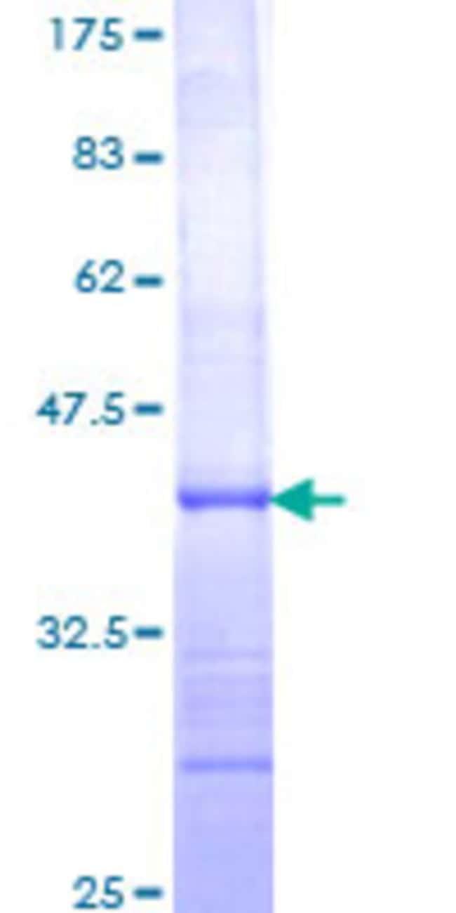 Abnova Human IL12B Partial ORF (NP_002178, 229 a.a. - 328 a.a.) Recombinant