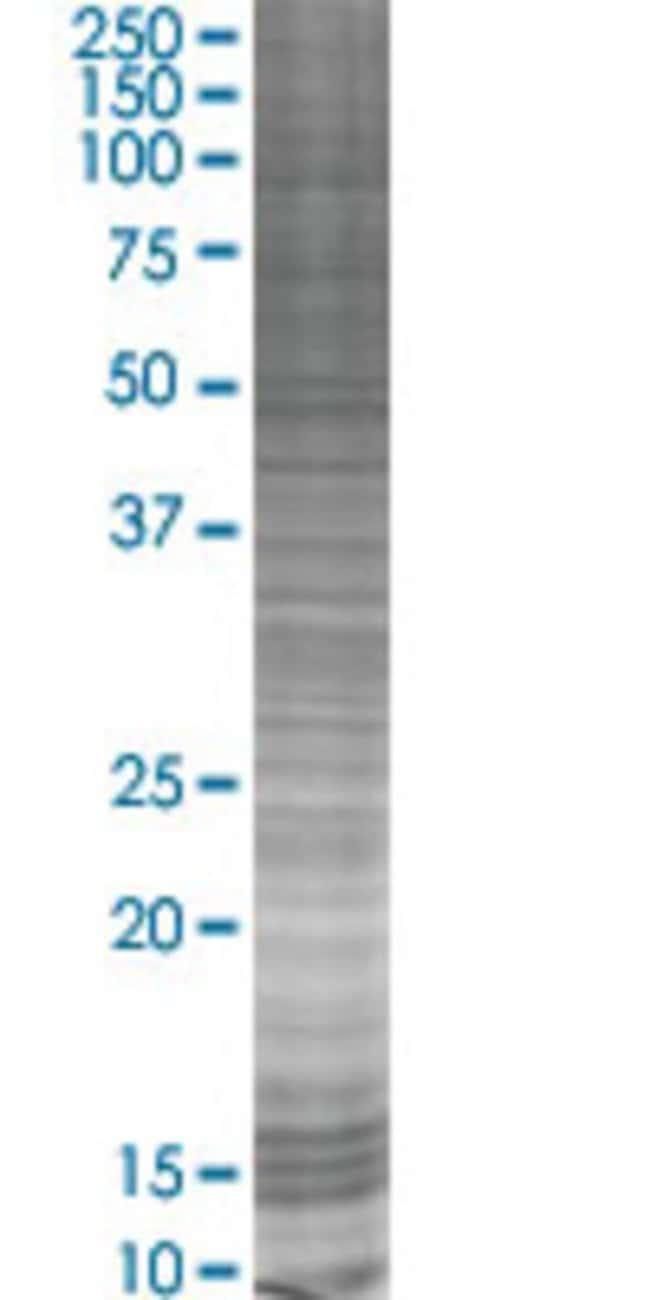 Abnova IL12RB1 293T Cell Transient Overexpression Lysate (Denatured) (T03)