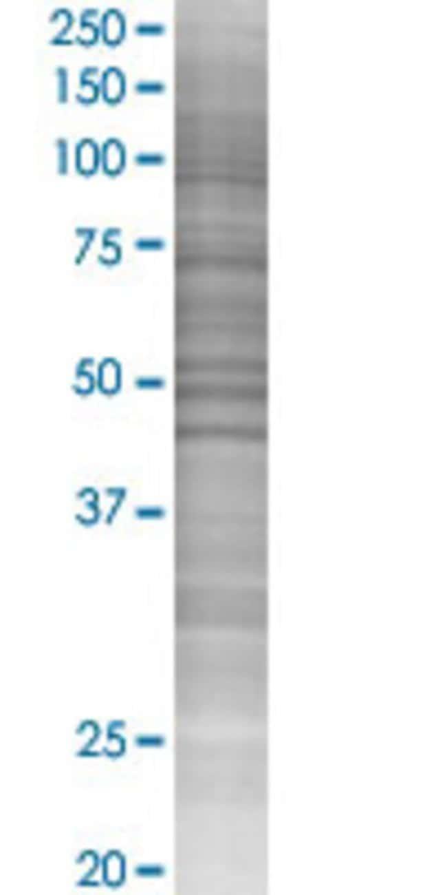 Abnova IL12RB2 293T Cell Transient Overexpression Lysate (Denatured) 100µL:Life