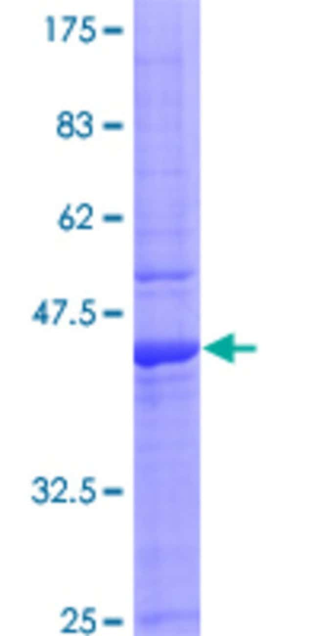 Abnova™Human IL15 Full-length ORF (AAH18149, 1 a.a. - 162 a.a.) Recombinant Protein with GST-tag at N-terminal 10μg Abnova™Human IL15 Full-length ORF (AAH18149, 1 a.a. - 162 a.a.) Recombinant Protein with GST-tag at N-terminal