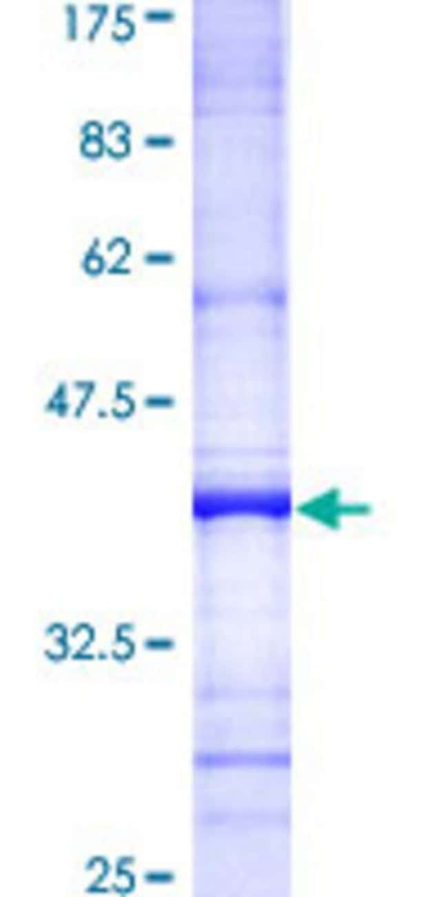 Abnova Human IL15 Partial ORF (AAH18149, 30 a.a. - 129 a.a.) Recombinant