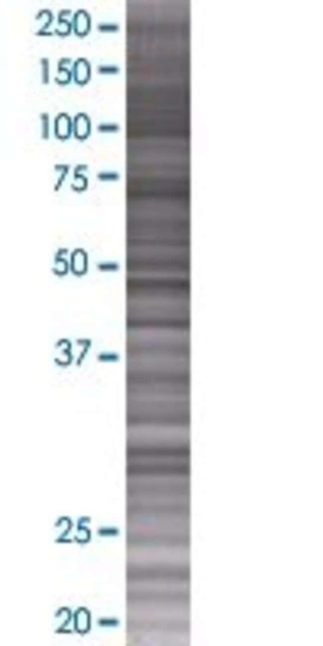Abnova IL15 293T Cell Transient Overexpression Lysate (Denatured) 100µL:Life
