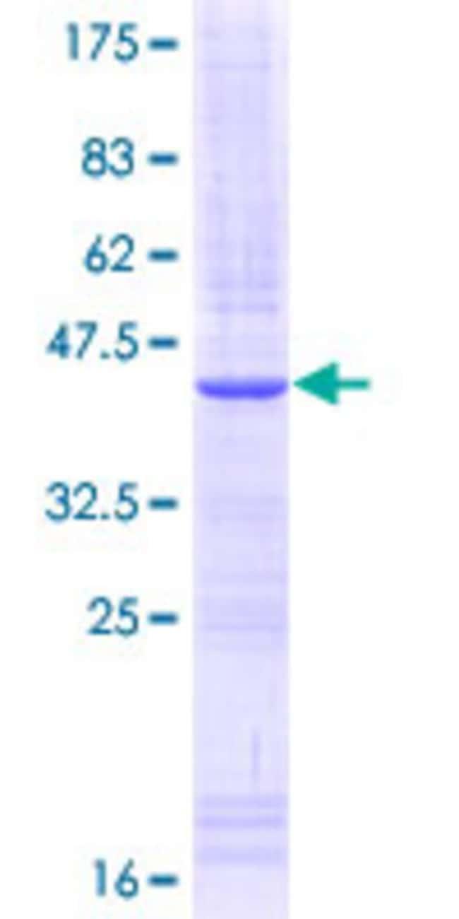 Abnova Human IL15RA Partial ORF (NP_002180, 31 a.a. - 130 a.a.) Recombinant