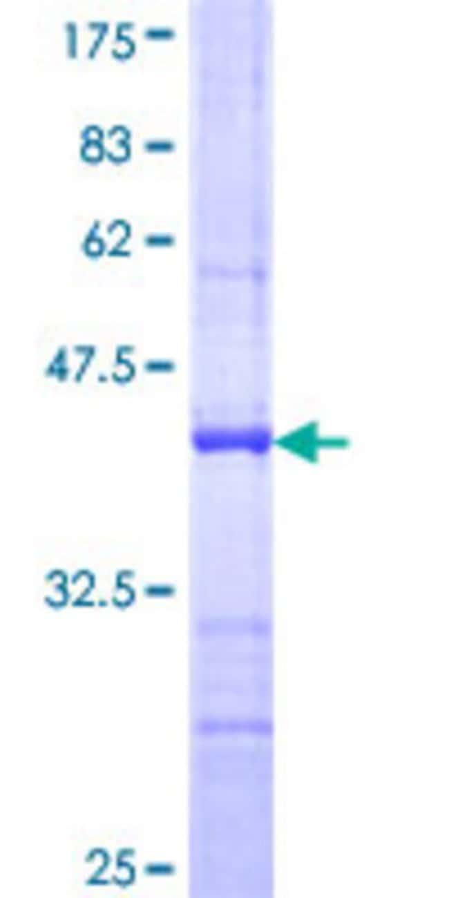 Abnova Human ILF2 Partial ORF (NP_004506, 151 a.a. - 250 a.a.) Recombinant