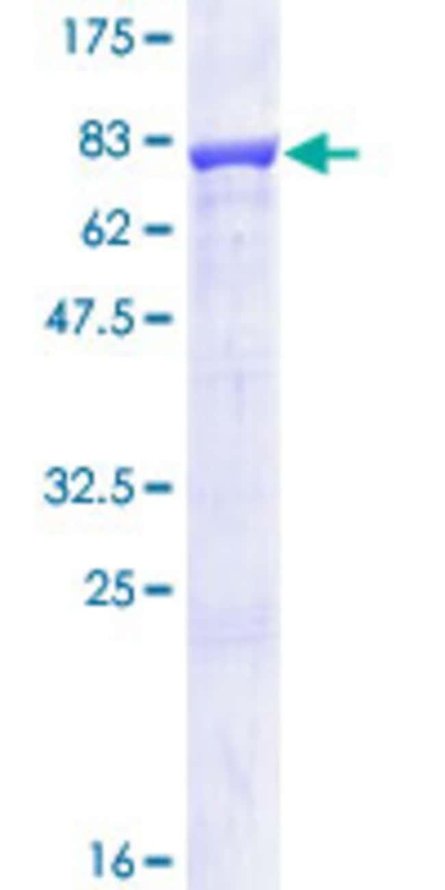 Abnova Human IMPDH1 Full-length ORF (NP_899066.1, 1 a.a. - 563 a.a.) Recombinant