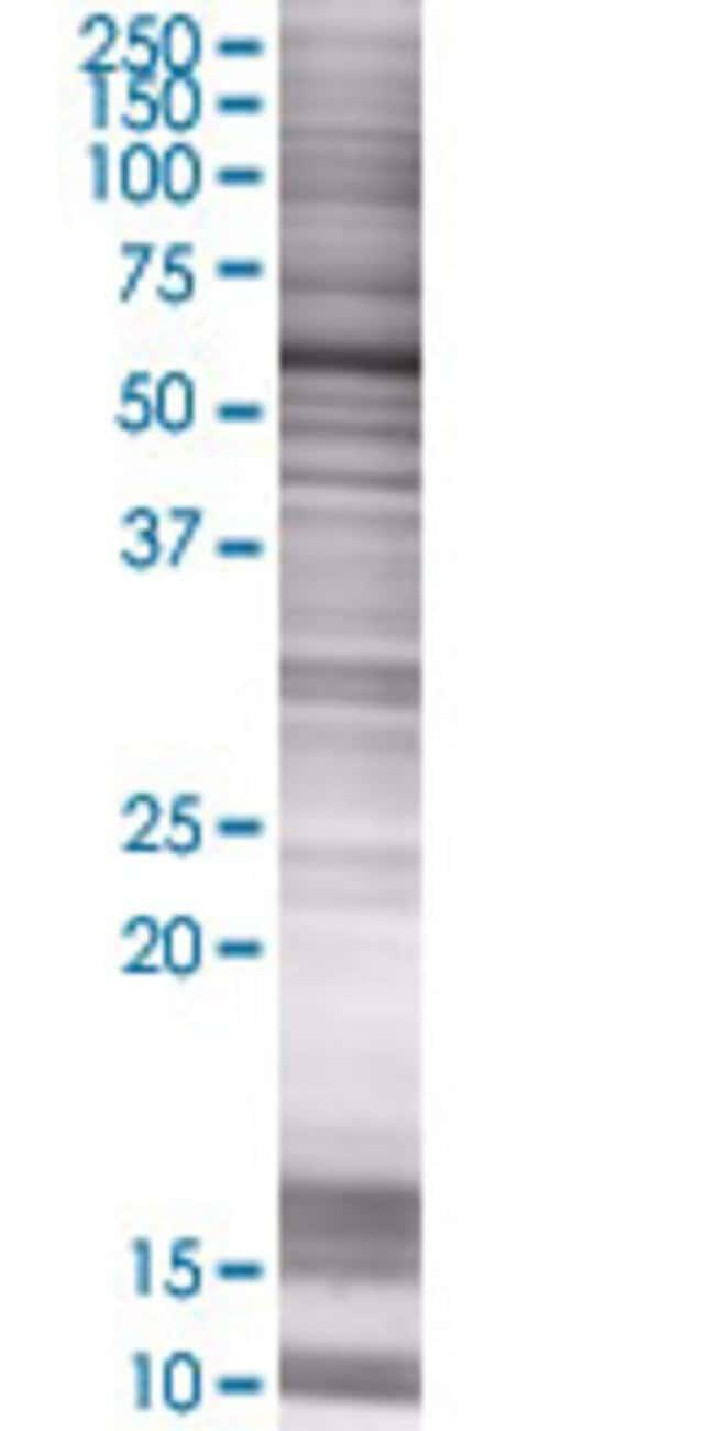 Abnova IMPDH1 293T Cell Transient Overexpression Lysate (Denatured) 100µL:Life