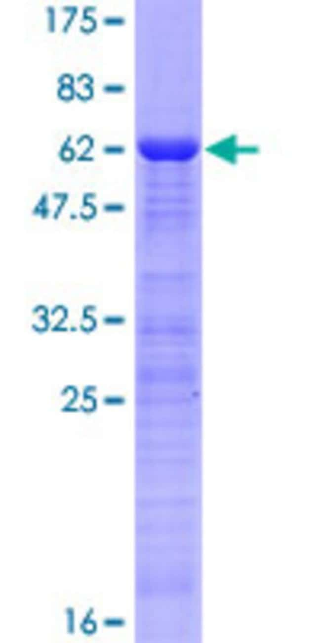 Abnova Human ING1 Full-length ORF (NP_937862.1, 1 a.a. - 279 a.a.) Recombinant