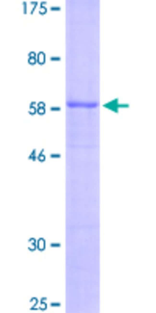 Abnova Human INHA Full-length ORF (AAH06391.1, 1 a.a. - 366 a.a.) Recombinant