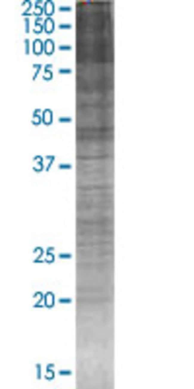 Abnova INHBA 293T Cell Transient Overexpression Lysate (Denatured) 100µL:Life