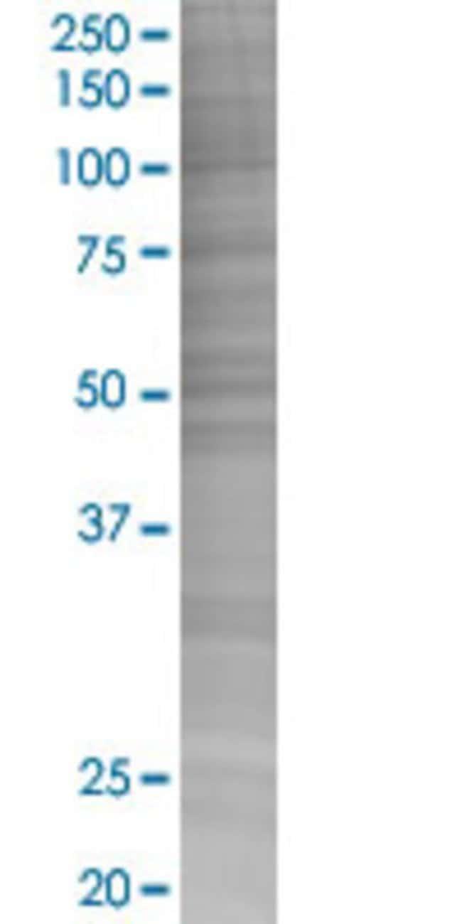 Abnova INPP1 293T Cell Transient Overexpression Lysate (Denatured) (T02)