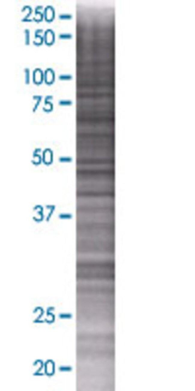 Abnova INPP5B 293T Cell Transient Overexpression Lysate (Denatured) 100µL:Life