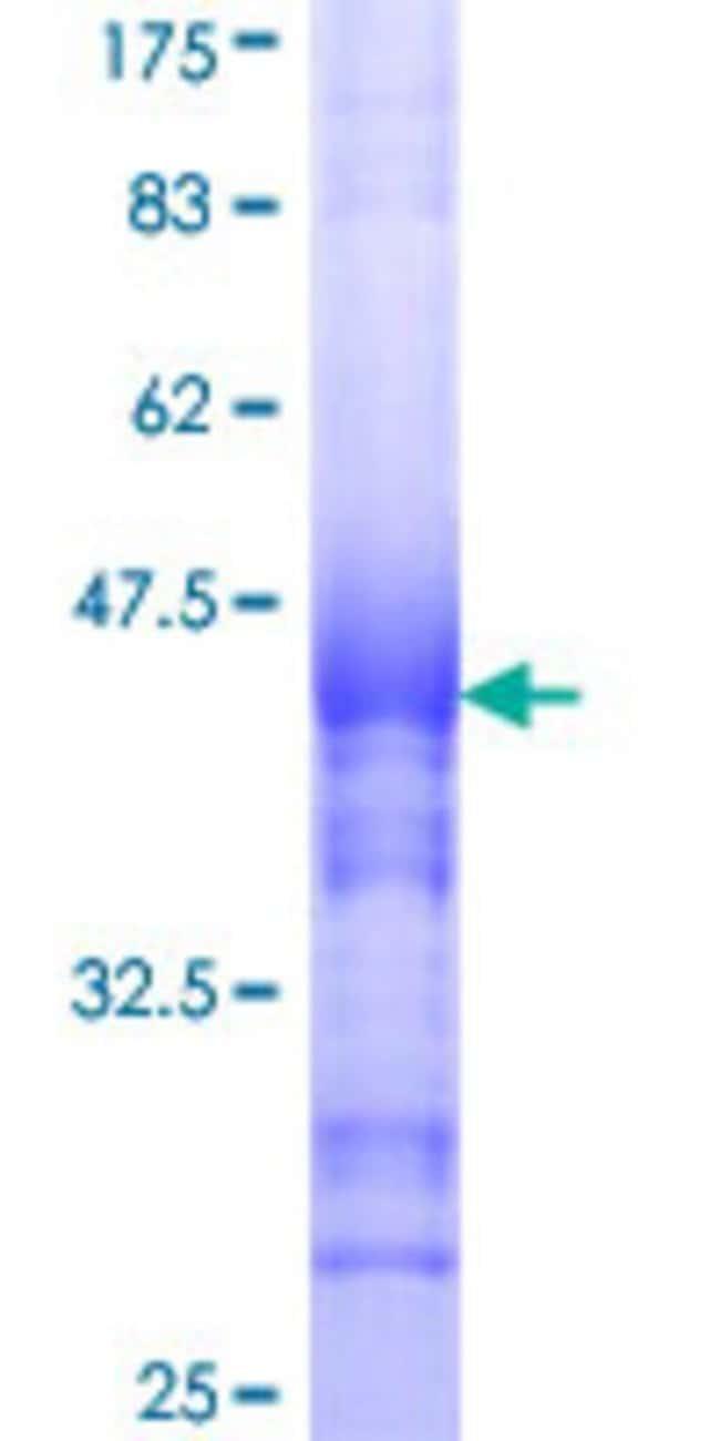 Abnova Human INSRR Partial ORF (NP_055030, 651 a.a. - 760 a.a.) Recombinant