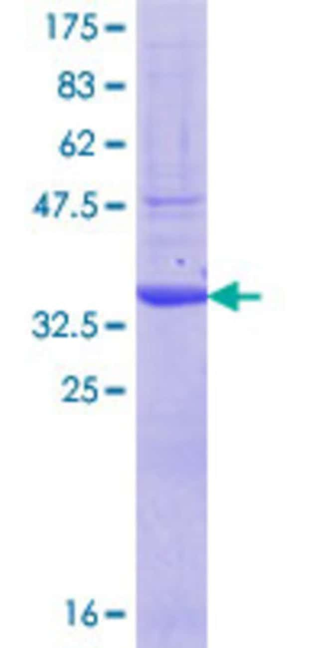 Abnova™Human IPP Partial ORF (NP_005888.1, 105 a.a. - 204 a.a.) Recombinant Protein with GST-tag at N-terminal 25μg Abnova™Human IPP Partial ORF (NP_005888.1, 105 a.a. - 204 a.a.) Recombinant Protein with GST-tag at N-terminal