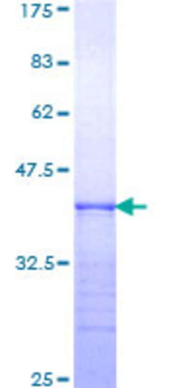 Abnova™Human ITGA6 Partial ORF (NP_000201, 24 a.a. - 133 a.a.) Recombinant Protein with GST-tag at N-terminal 25μg Abnova™Human ITGA6 Partial ORF (NP_000201, 24 a.a. - 133 a.a.) Recombinant Protein with GST-tag at N-terminal