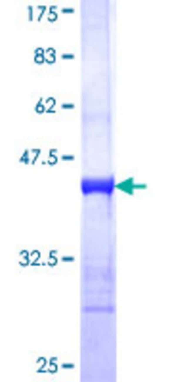 Abnova Human IRF4 Partial ORF (NP_002451, 342 a.a. - 451 a.a.) Recombinant