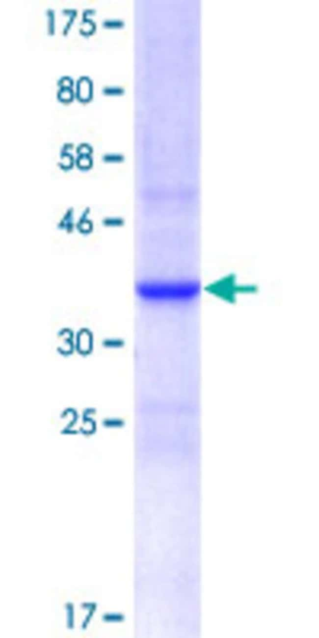 Abnova Human IRF6 Partial ORF (NP_006138, 368 a.a. - 467 a.a.) Recombinant