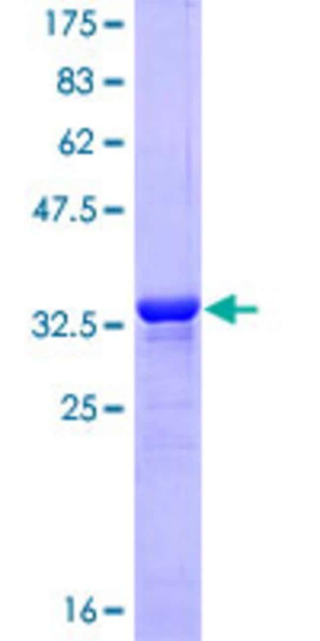 Abnova Human ISL1 Partial ORF (NP_002193, 63 a.a. - 159 a.a.) Recombinant
